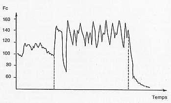 Enregistrement de la fréquence cardiaque au cours d'une séance en terrain varié de 20 min. Moyenne d'un lot de 9 chevaux : Fc moyenne 157 bts/min, [La] = 2.6±0.6 mmol/l.
