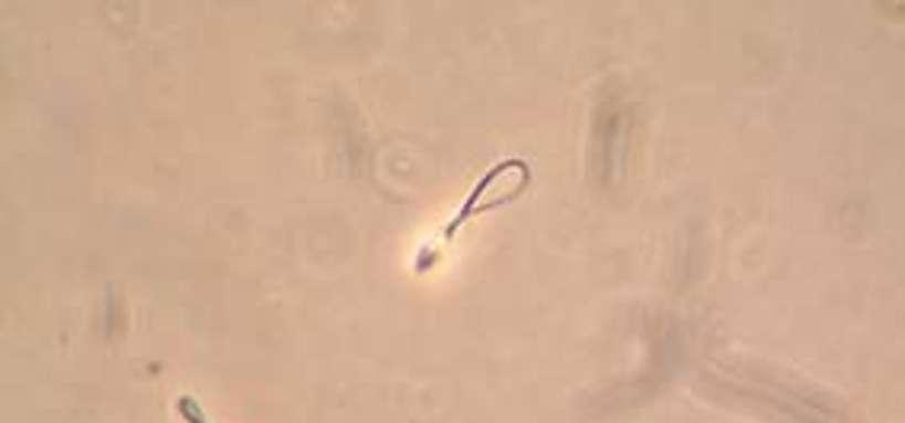 Spermatozoïdes vus au microscope
