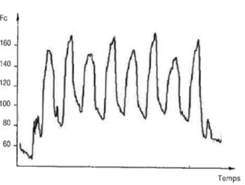 Enregistrement de la fréquence cardiaque au cours d'une séance de montées sévères au pas : 8 fois en 20 minutes. Moyenne d'un lot de 11 chevaux : Fc entre 160 et 170 bts/min, [La] = 1.7±0.7 mmol/l.